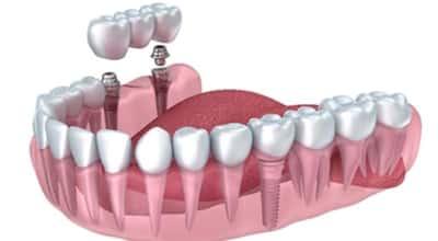 Prótesis para reemplazar uno o mas dientes
