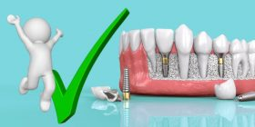beneficios de los implantes dentales