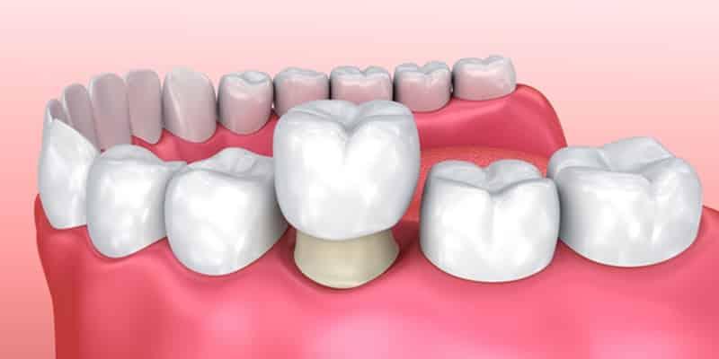 corona dental estética