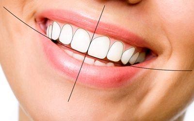 Diseño de la sonrisa