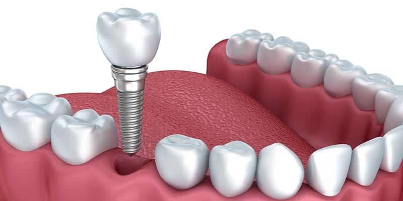 protesis sobre implantes dentales