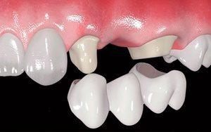 puente fijo dental de ceramica
