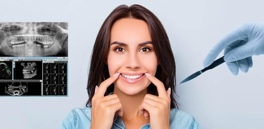 cirugía oral en lima