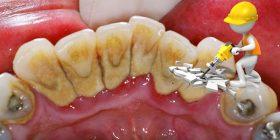 Sarro Dental, ¡4 formas para eliminarlo!