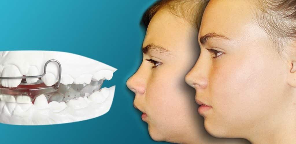 ortodoncia y ortopedia niños