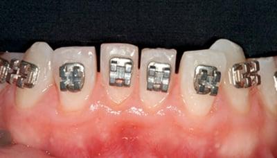 desgaste dental en ortodoncia