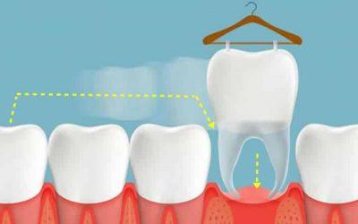 Trasplante Dental