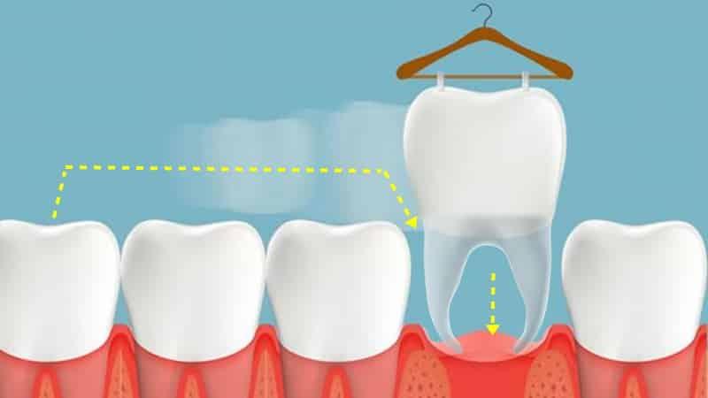 Transplante dental