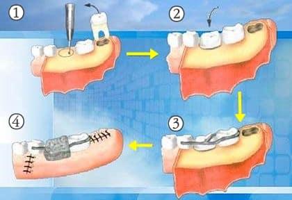 Pasos del transplante dental