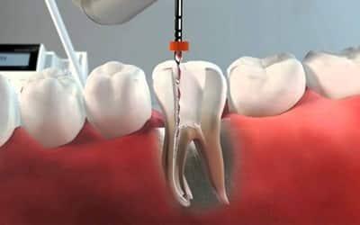 endodoncia tratamiento