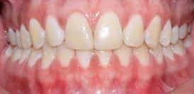 lineas medias al final de una buena ortodoncia