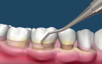 raspado y alisado radicular dental
