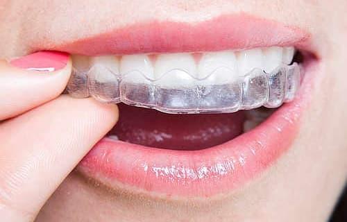 costo de los alineadores dentales