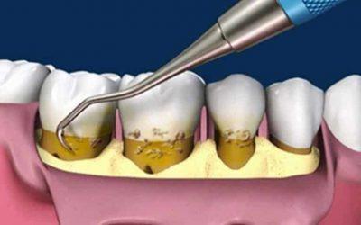 cirugia-periodontal-con-colgajo-y-curetaje