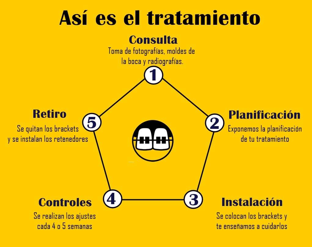 como es el tratamiento de ortodoncia diagrama