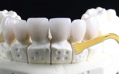 simulación de corticotomía dental en maqueta de yeso
