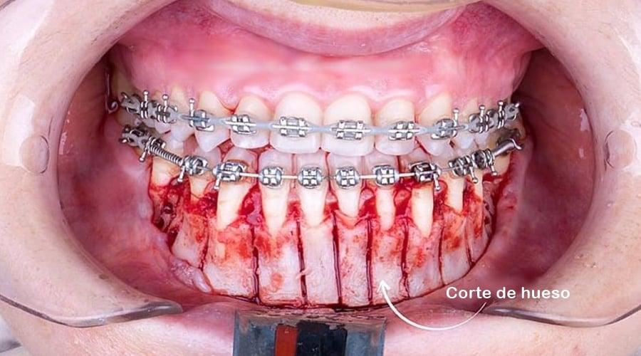 corticotomía para acelerar ortodoncia