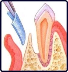 regeneración ósea paso 1