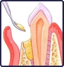 regeneración ósea paso 3