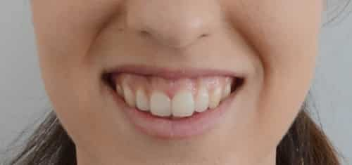 sonrisa gingival antes