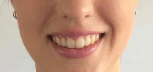 sonrisa gingival después