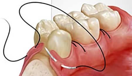 sutura en cirugía periodontal