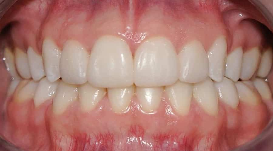 un resultado bien acabado de ortodoncia