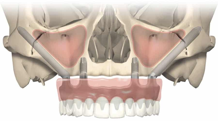 Implantes Dentales Cigomáticos