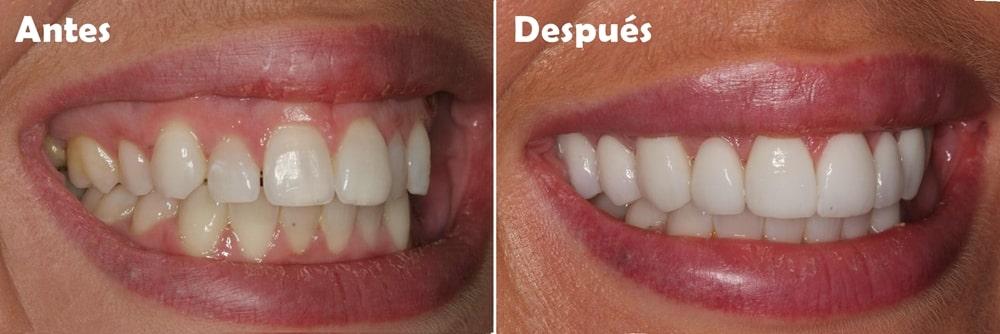 cirugia para sonrisa gingival - resposición labial