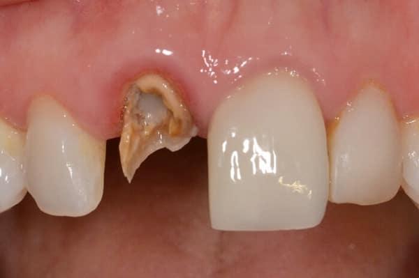 Fractura de crorona dental por mala endodoncia