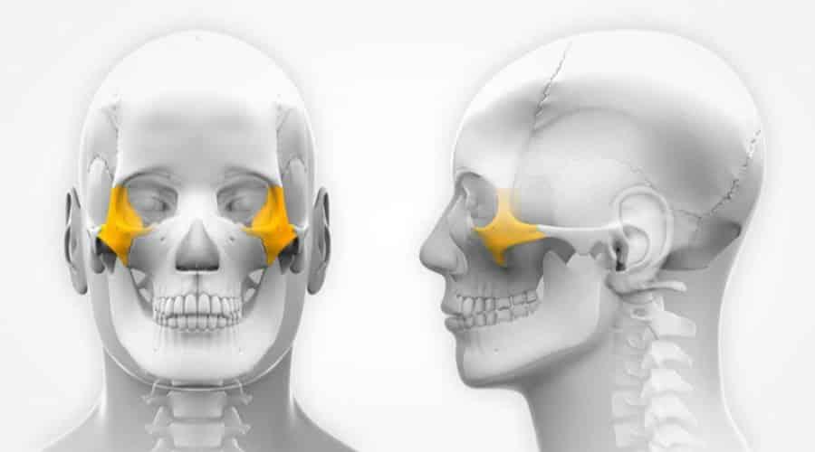 huesos zigomaticos de la cara para implantes dentales