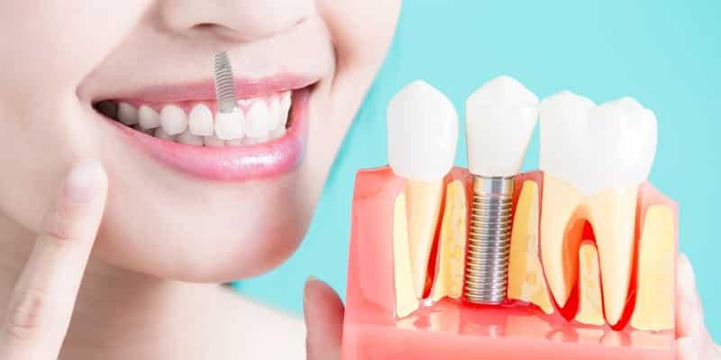 Los implantes dentales inmediatos