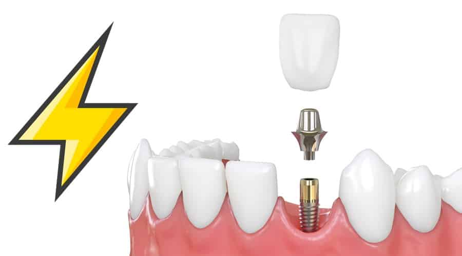 implantes dentales inmediatos rápidos