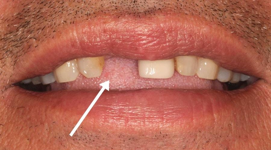 indicaciones de los implantes dentales inmediatos