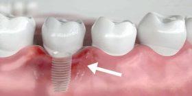 periimplantitis - infección del implante dental