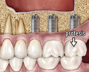 Rehabilitación con prótesis dentales