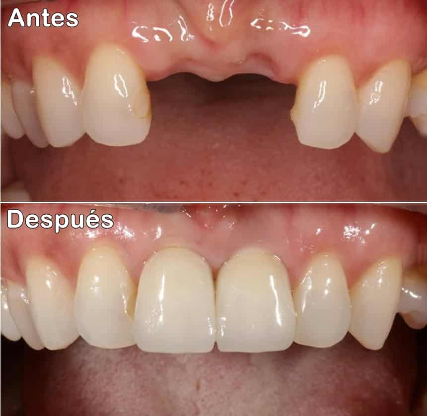 Antes después de los implantes dentales