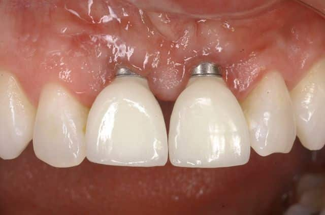 Exposición y periimplantitis en implantes dentales