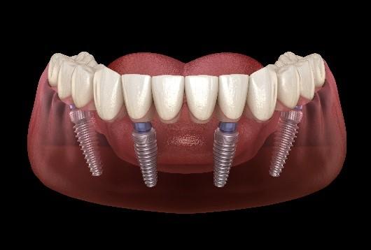 implantes all on four en maxilar inferior