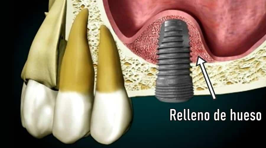 elevación del seno maxilar para implantes
