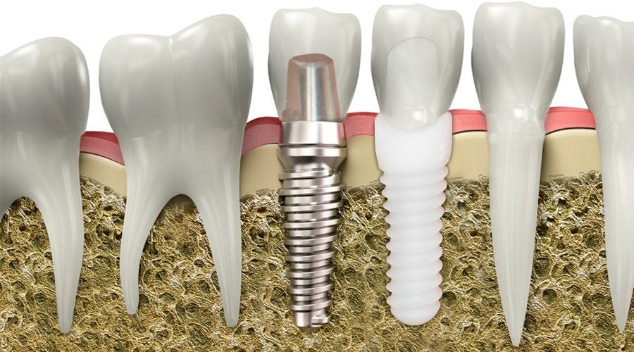 Implantes dentales de zirconio en hueso