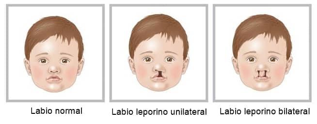 labio leporino unilateral y bilateral
