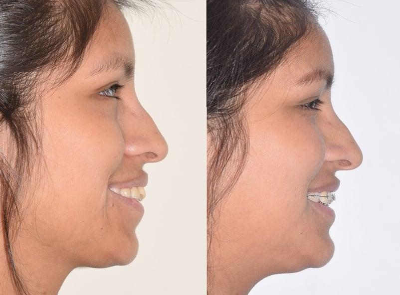 Avance de tratamiento con extracciones ortodoncia