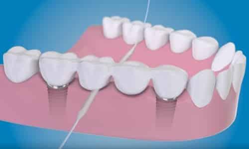 2 limpieza de implantes dentales con superfloss