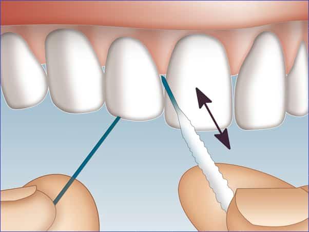 Higiene con el hilo dental superfloss el mejor