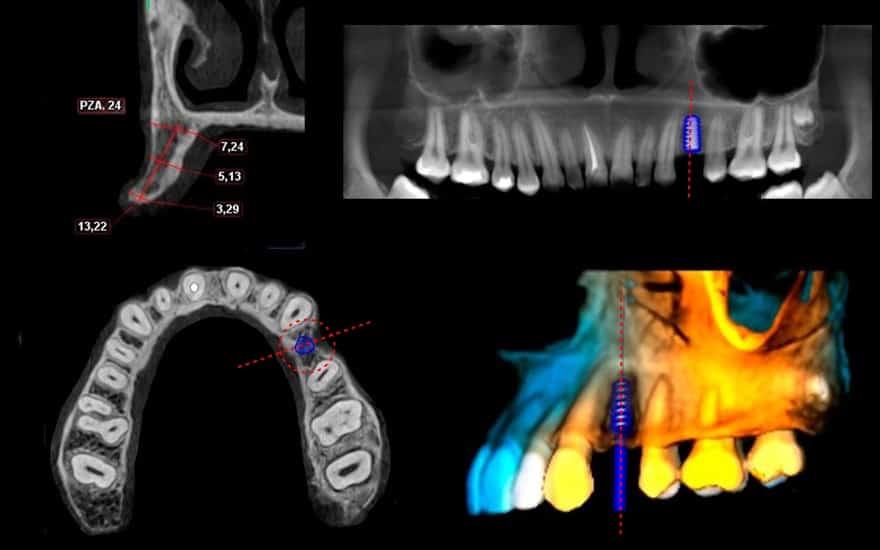 Tomografía CONE BEAM para implantes dentales