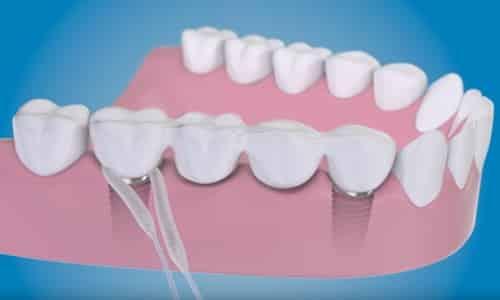 limpieza de implantes dentales con superfloss