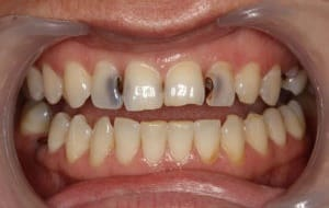 caries dental recurrente