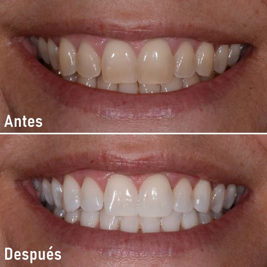 blanqueamiento dental antes despues peru