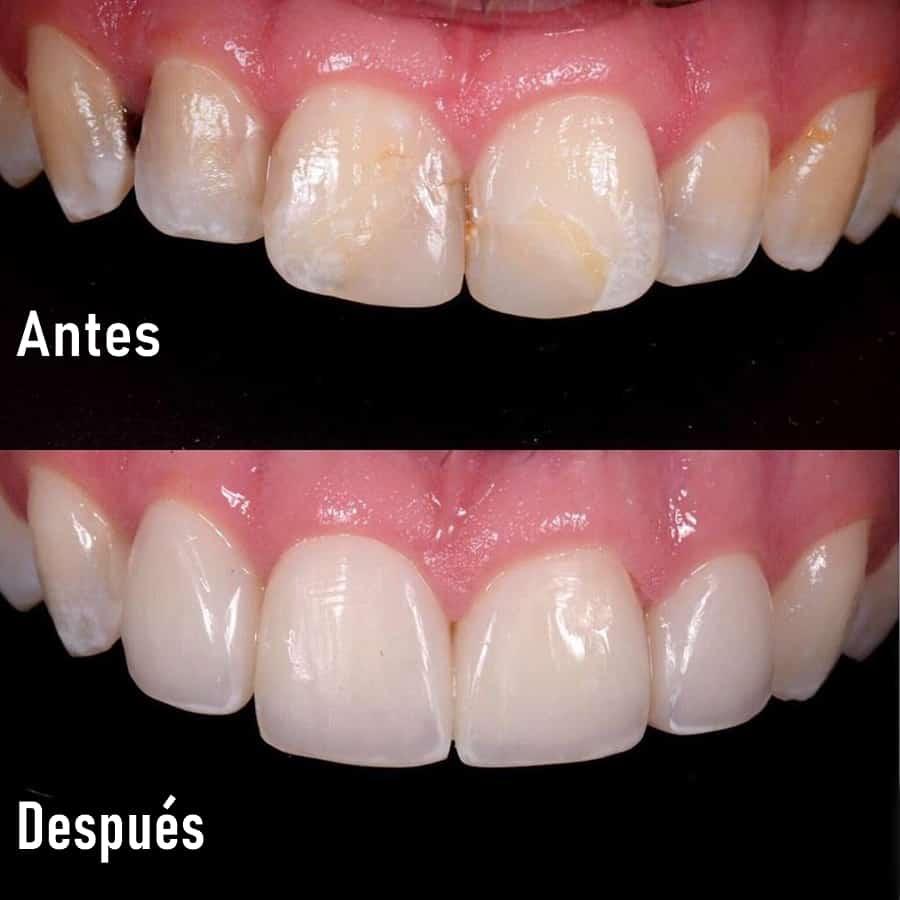 carilla dental directa de resina composite